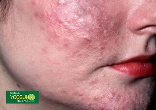 Bệnh viêm da demodex